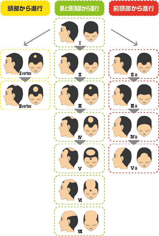 男性パターン