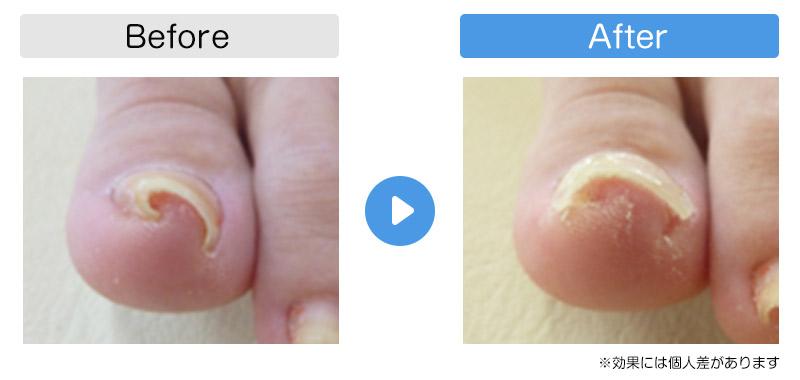 巻き爪改善例