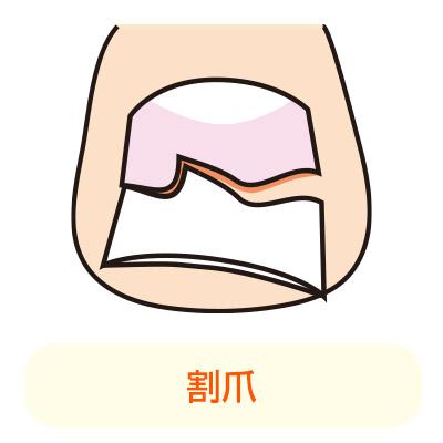軽度の巻き爪