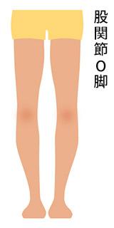 股関節O脚